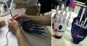It takes many hands to make a Bebionic hand.